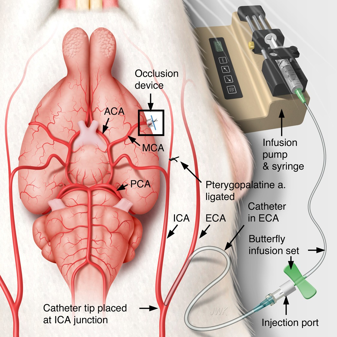 Intra-arterial administration of recombinant tissue-type plasminogen ...