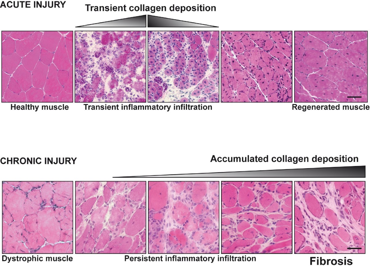 Aberrant Repair And Fibrosis Development In Skeletal Muscle