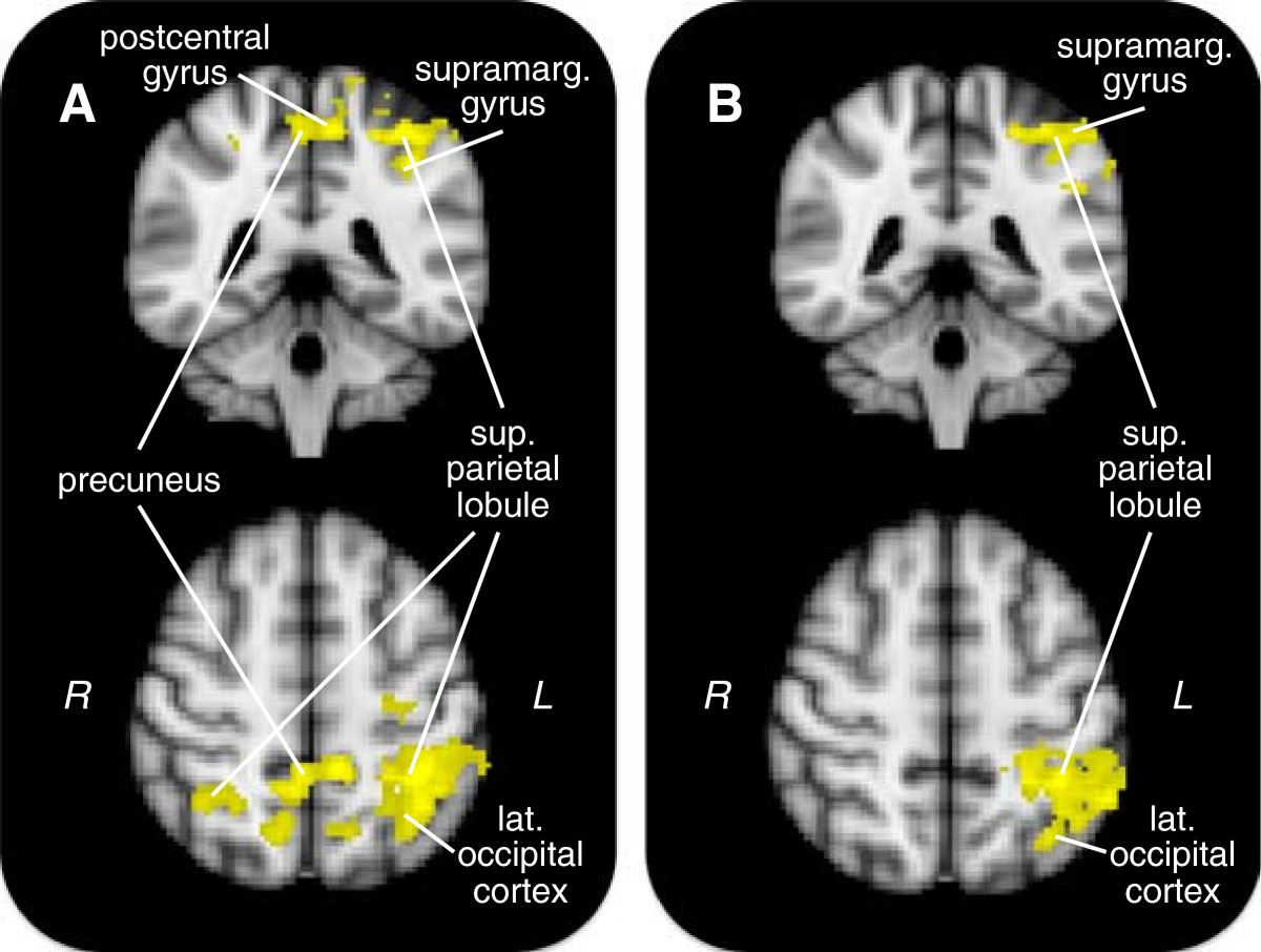 Increased default mode network activity in socially anxious ...