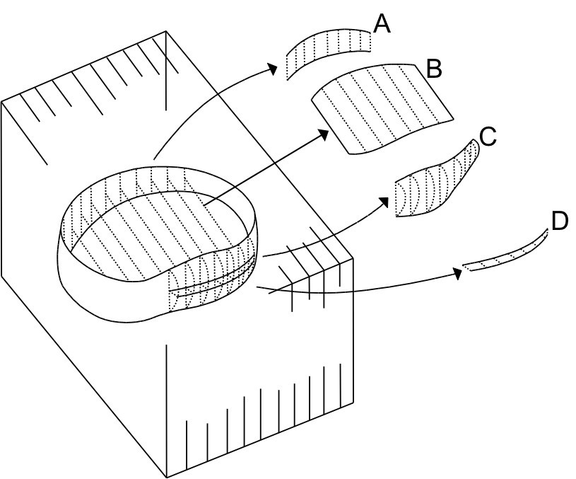 A Method For Quantitative Measurement Of Lumbar Intervertebral Disc