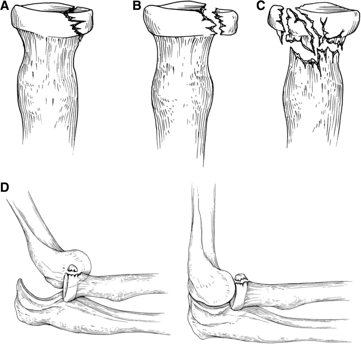 distal radius fractures drf pain management Distal radius fractures can be reset either with surgery (open reduction) or without it (closed reduction) during recovery, these pain management techniques can be used for patients: physicians may prescribe a short course of opioid pain medications after a reduction.