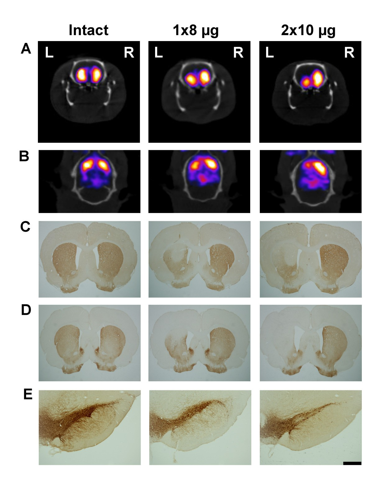 High correlation between in vivo [123I]β-CIT SPECT/CT imaging and