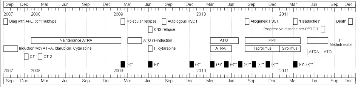 Multiple Isolated Extramedullary Relapse Of Acute