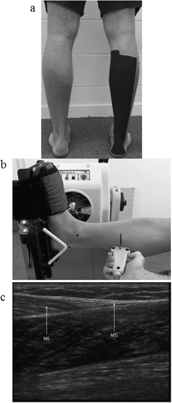 Effect of microtitanium impregnated tape on the recovery of triceps ...