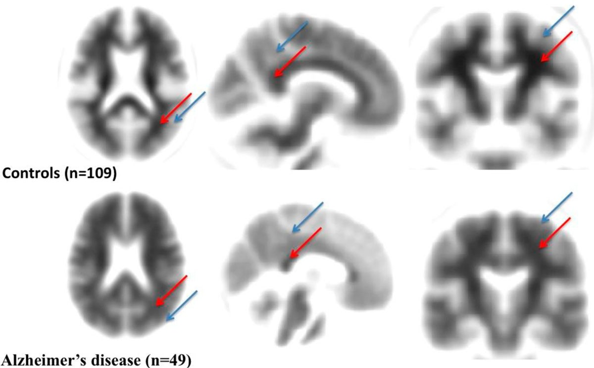 Role Of Emerging Neuroimaging Modalities In Patients With Cognitive Eagle Diagram 10 From 69 Votes 7 76 Figure 1