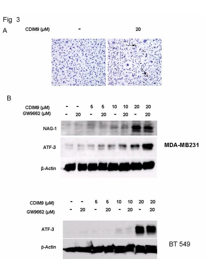 A MEK inhibitor has in vivo antitumor activity in basal
