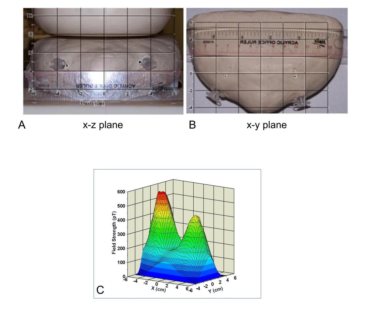 Detection Of Breast Cancer Cells Using Targeted Magnetic Sensitive Electromagnetic Field Sensor Figure 6