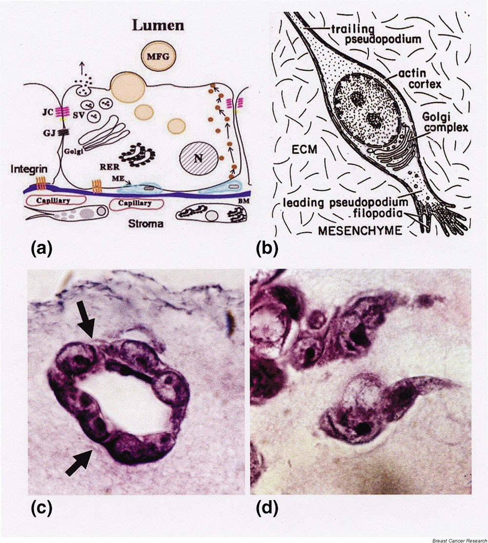 Multistep Tumorigenesis And The Microenvironment Breast Cancer Lt Pro Dual Function Dark 02r 14 Gr Figure 1
