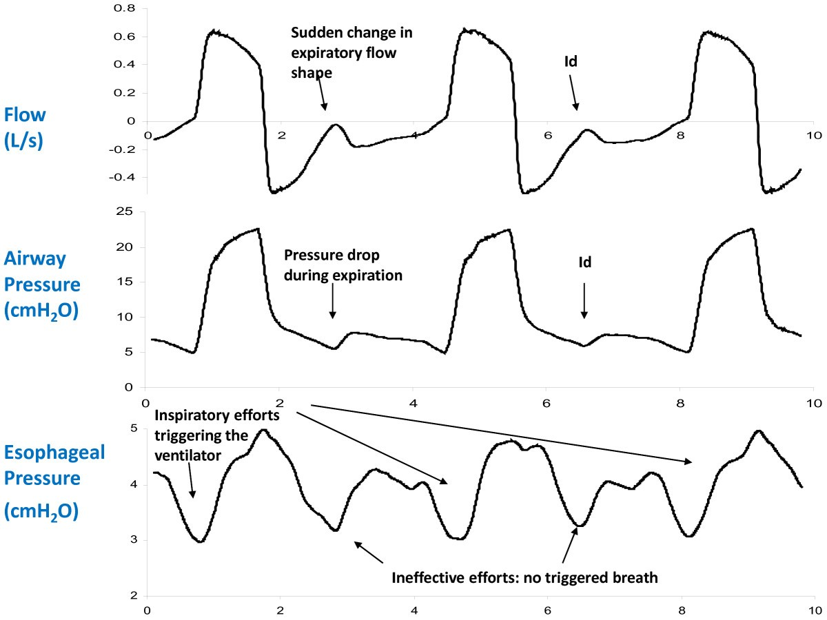 Clinical Review Respiratory Monitoring In The Icu A Consensus Of Back Gt Gallery For Inhaling And Exhaling Diagram Figure 5