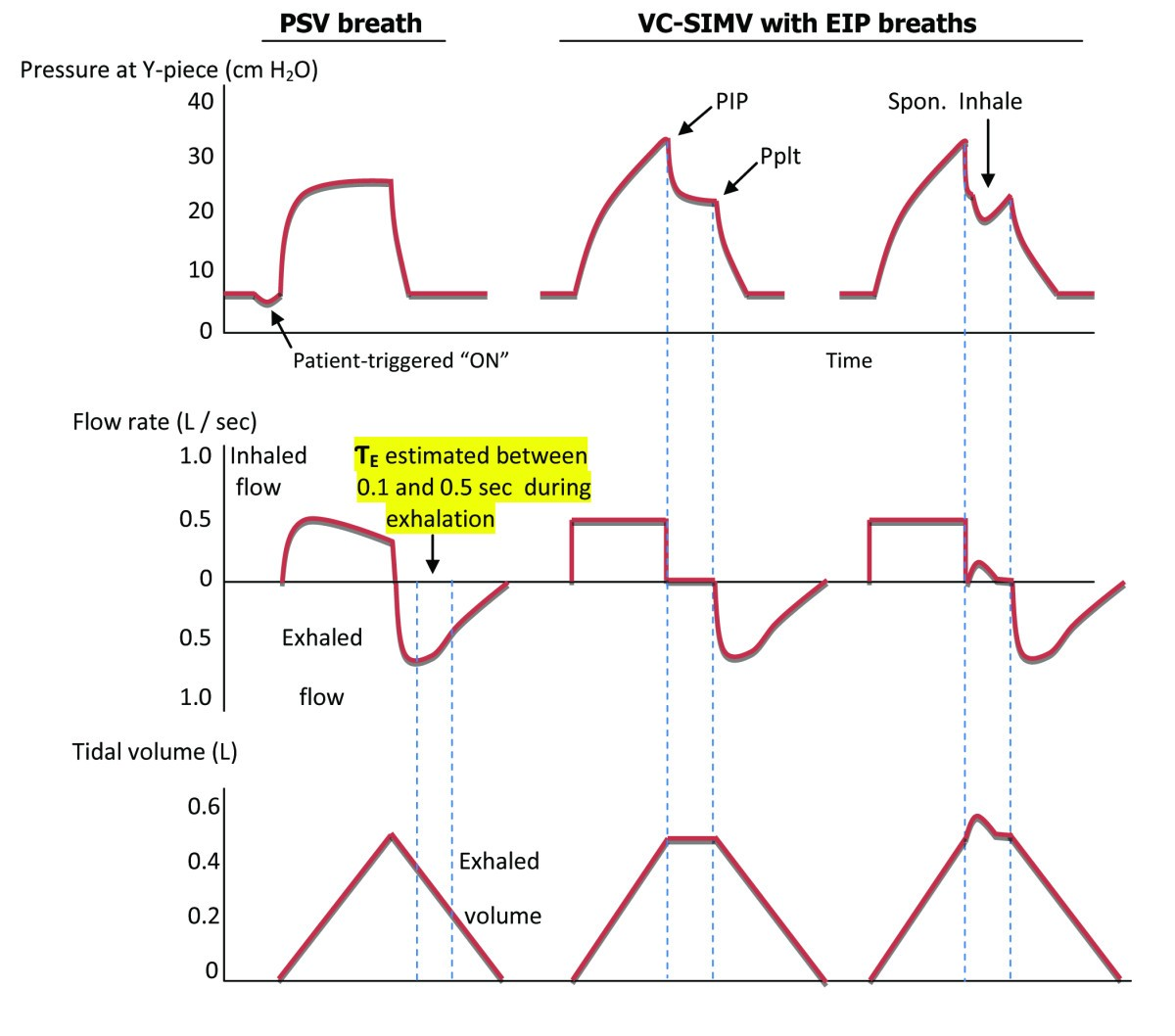 Expiratory Time Constant For Determinations Of Plateau Pressure Inhalation And Exhalation Diagram 9 Figure 1