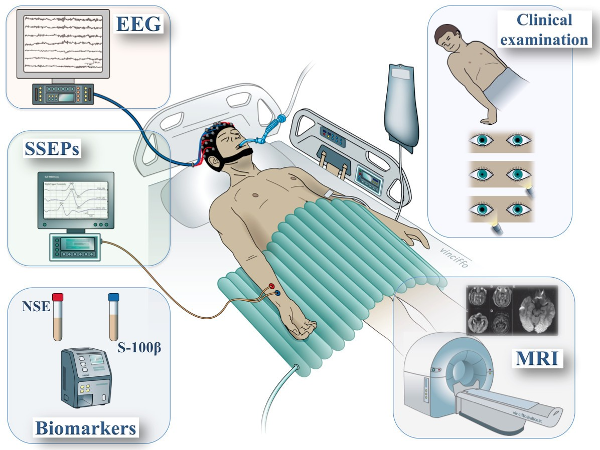 How to assess prognosis after cardiac arrest and therapeutic hypothermia
