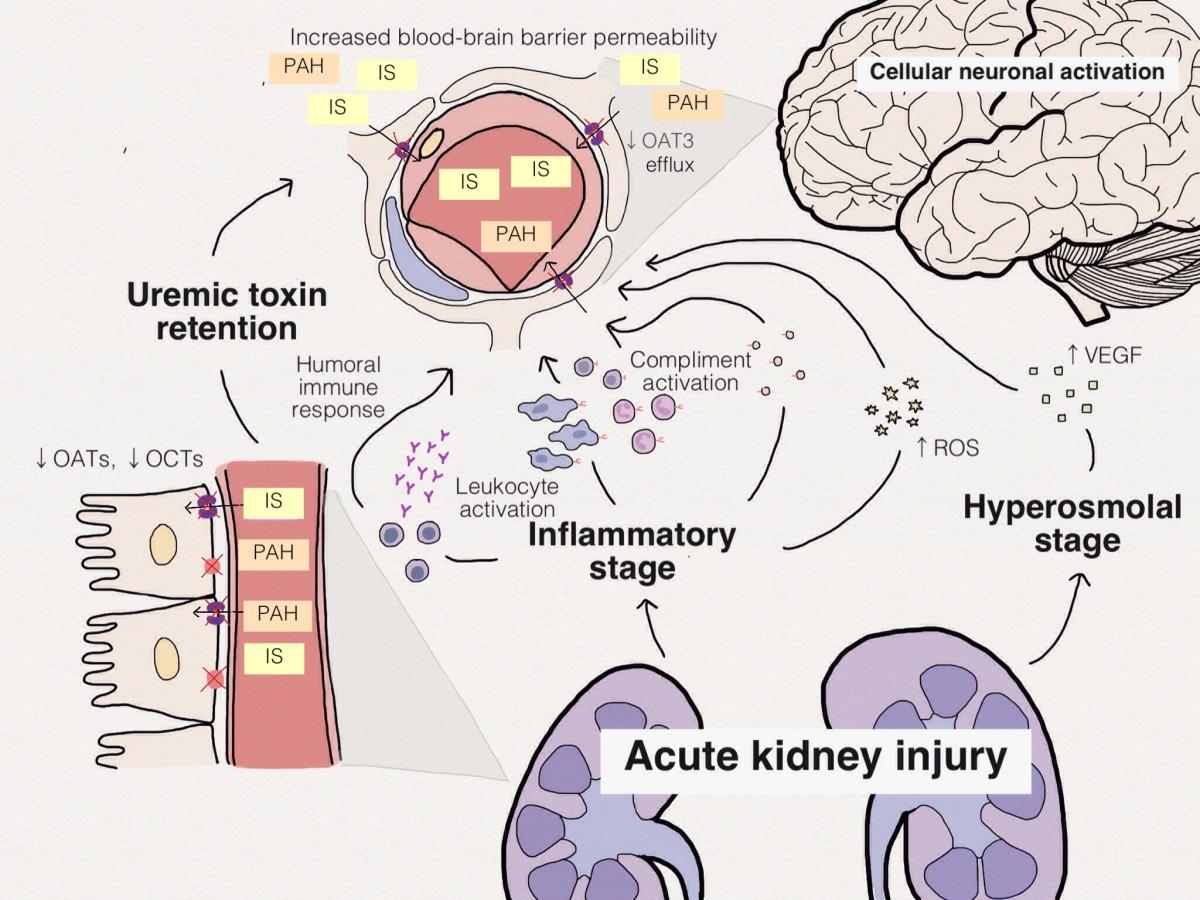 Brain Kidney Crosstalk Critical Care Full Text