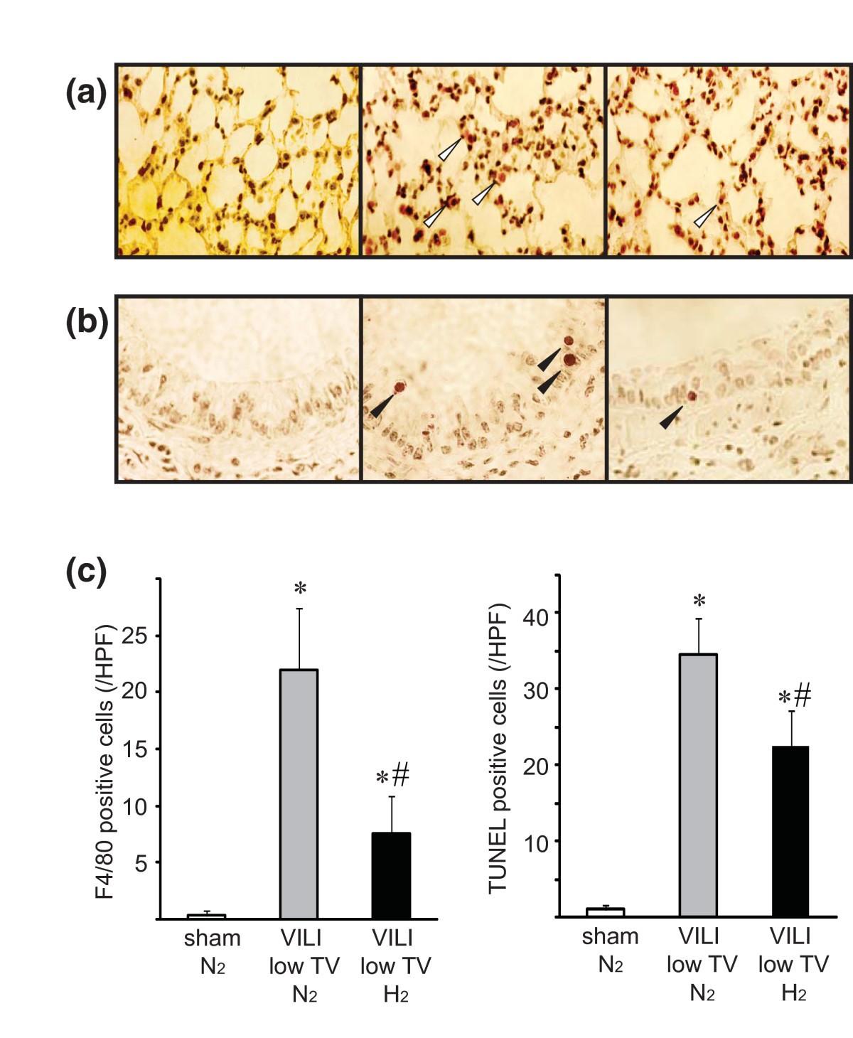Hydrogen inhalation ameliorates ventilator-induced lung injury