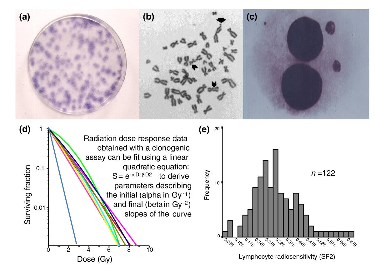 Genetics And Genomics Of Radiotherapy Toxicity Towards Prediction Gibson Es 175 Wiring Diagram Figure 3