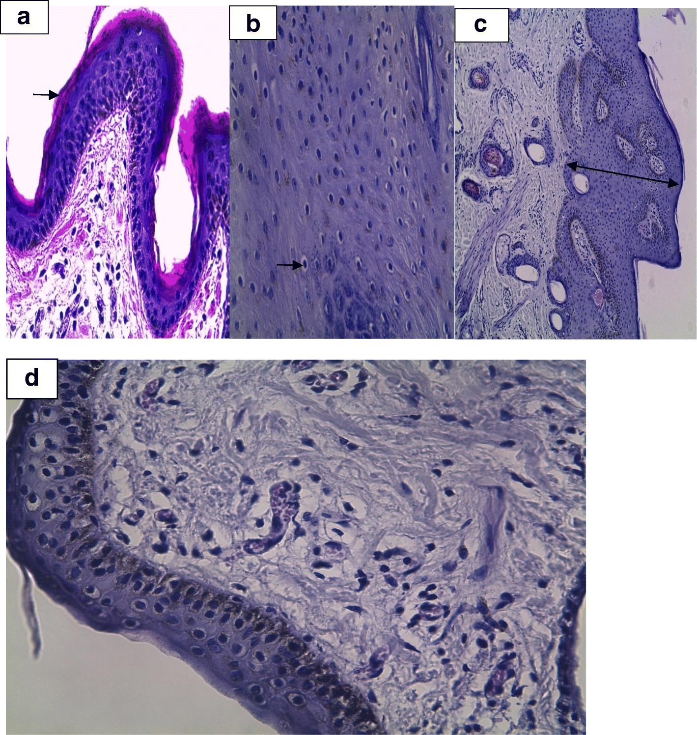 papillomas and hyperkeratosis cancer na garganta hpv sintomas