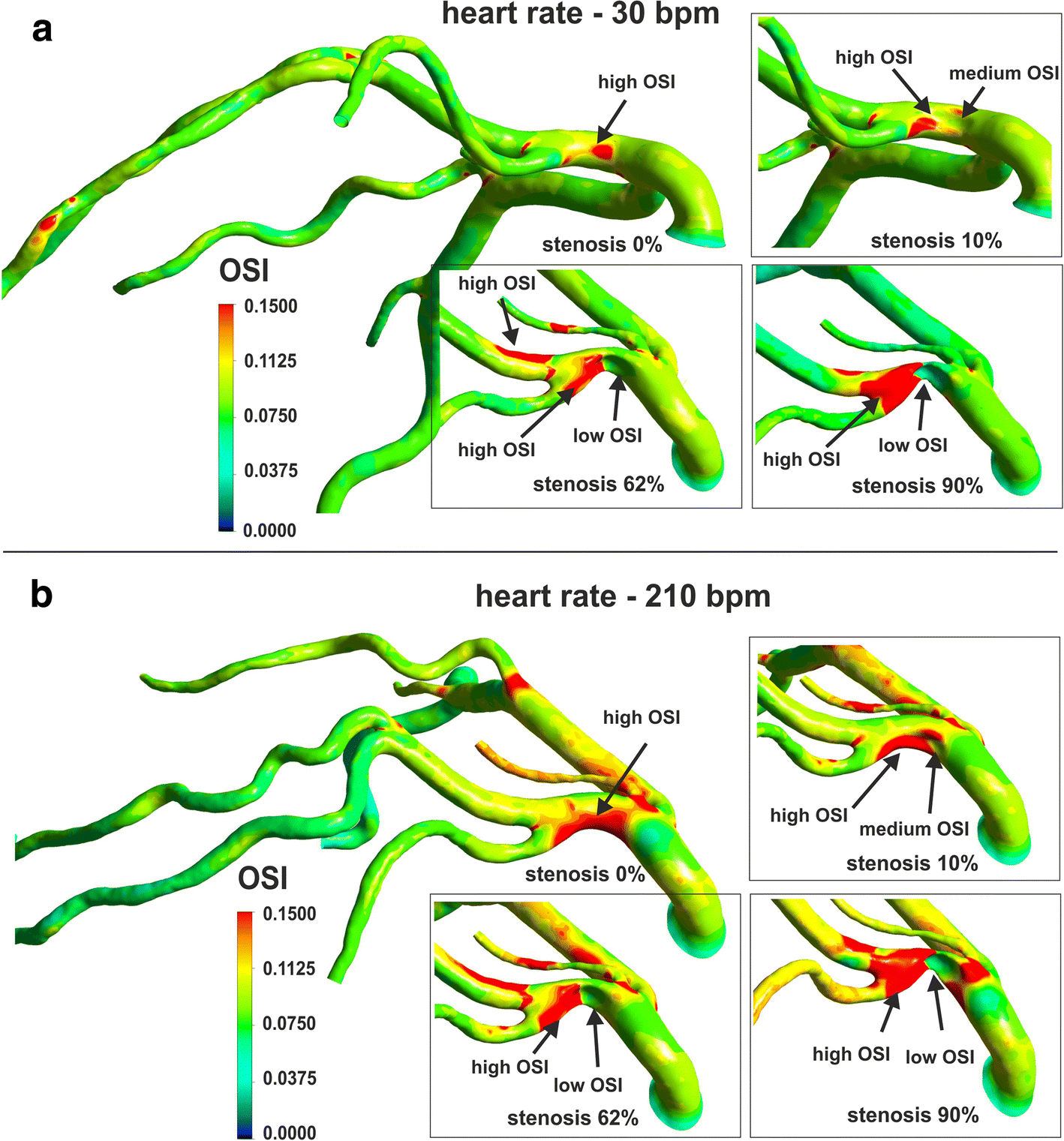 Numerical Analysis Of The Impact Of Flow Rate Heart Rate Vessel