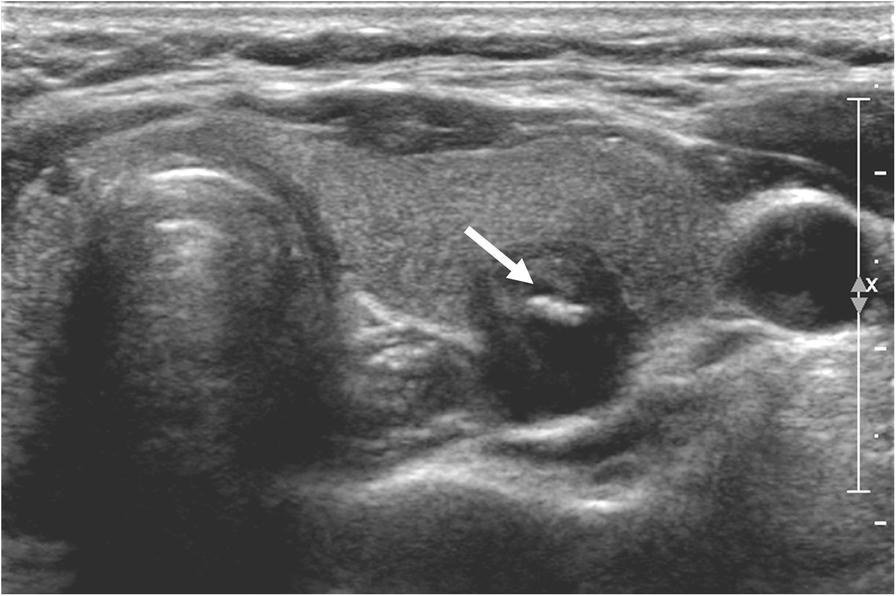 Echogenic Foci In Thyroid Nodules Diagnostic Performance With