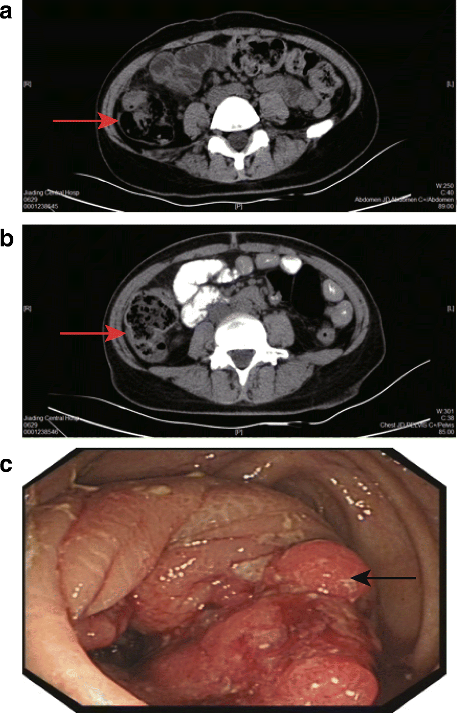 Treatment Of Colon Cancer In A Patient With Systemic Lupus Erythematosus A Case Report Bmc Cancer Full Text