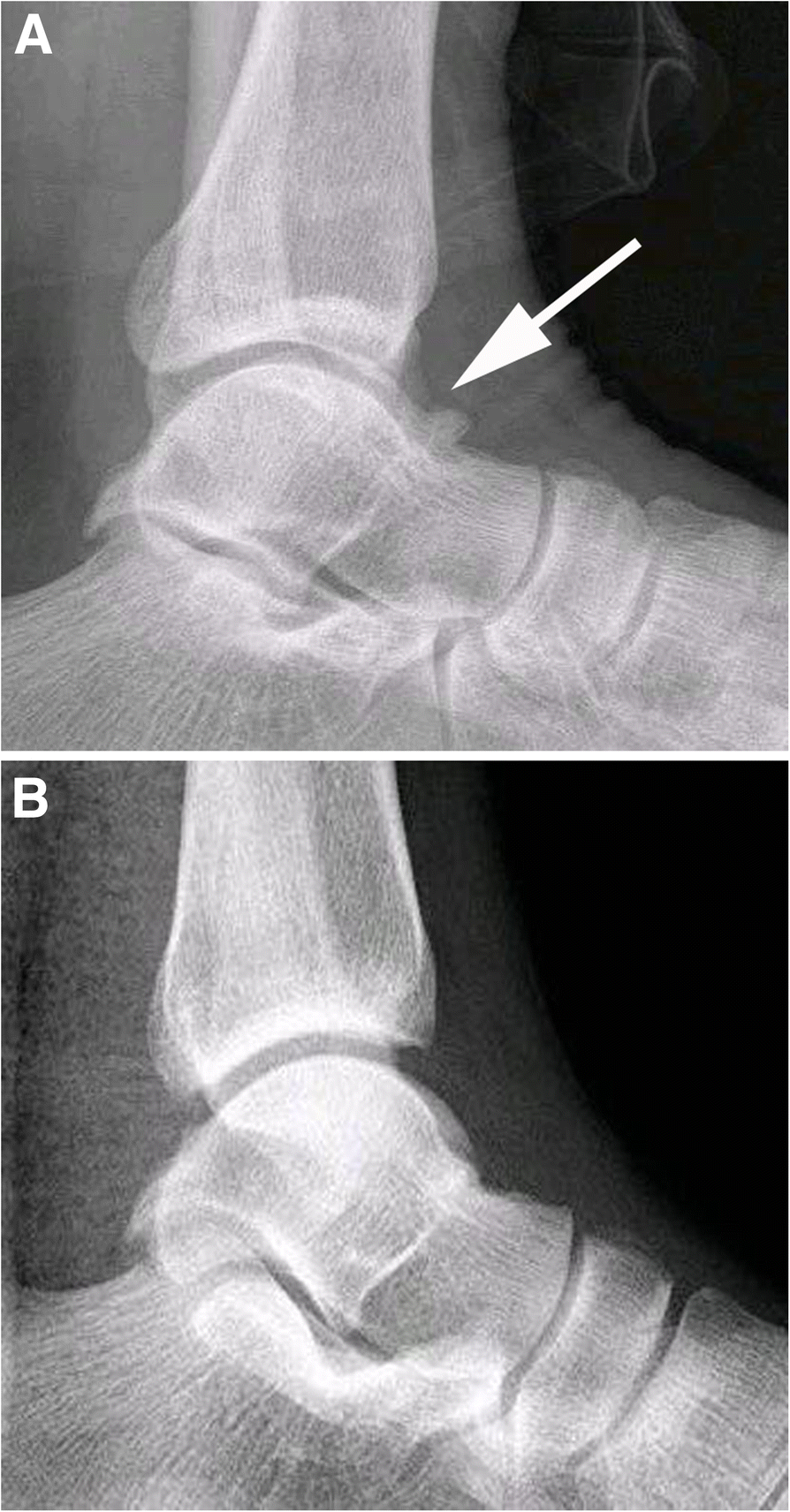 Arthroscopic Debridement Of Anterior Ankle Impingement In Patients