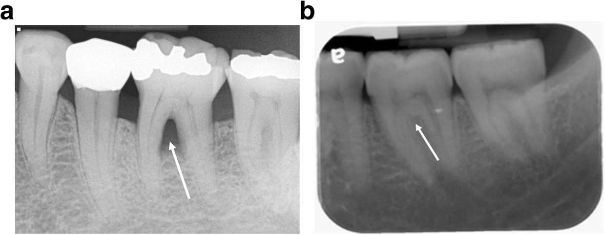 A retrospective study on molar furcation assessment via clinical ...