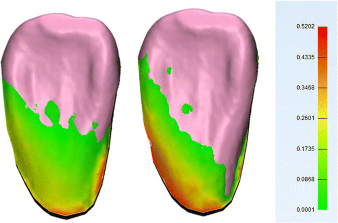 A Novel In Vivo Method To Evaluate Trueness Of Digital Impressions 3d Tooth Diagram Additionally Parts Bridge For Teeth Fig 4