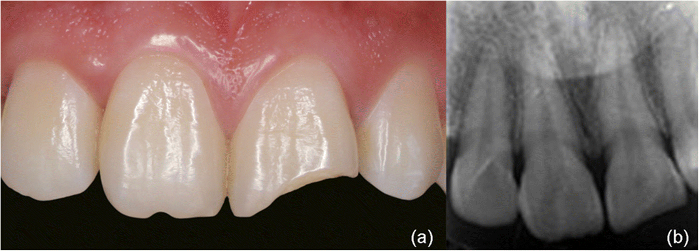 Direct Resin Composite Restoration Of Maxillary Central Incisors