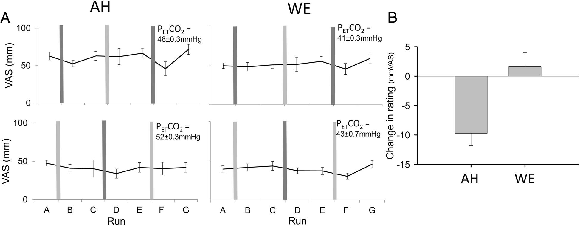 Inhaled Furosemide For Relief Of Air Hunger Versus Sense Inhalation And Exhalation Diagram H Valve J Fig 5