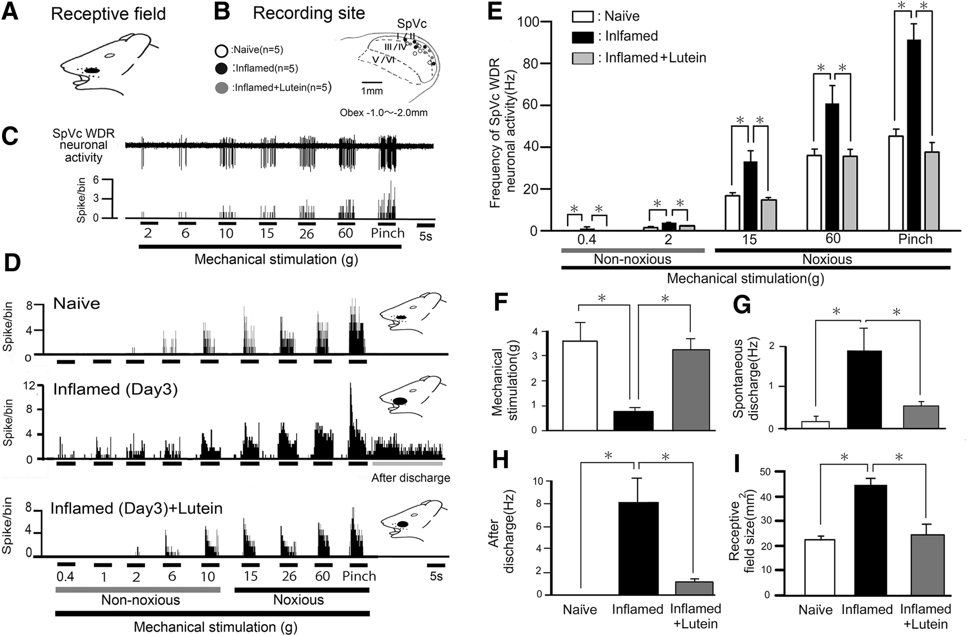 Suppression of hyperexcitability of trigeminal nociceptive neurons