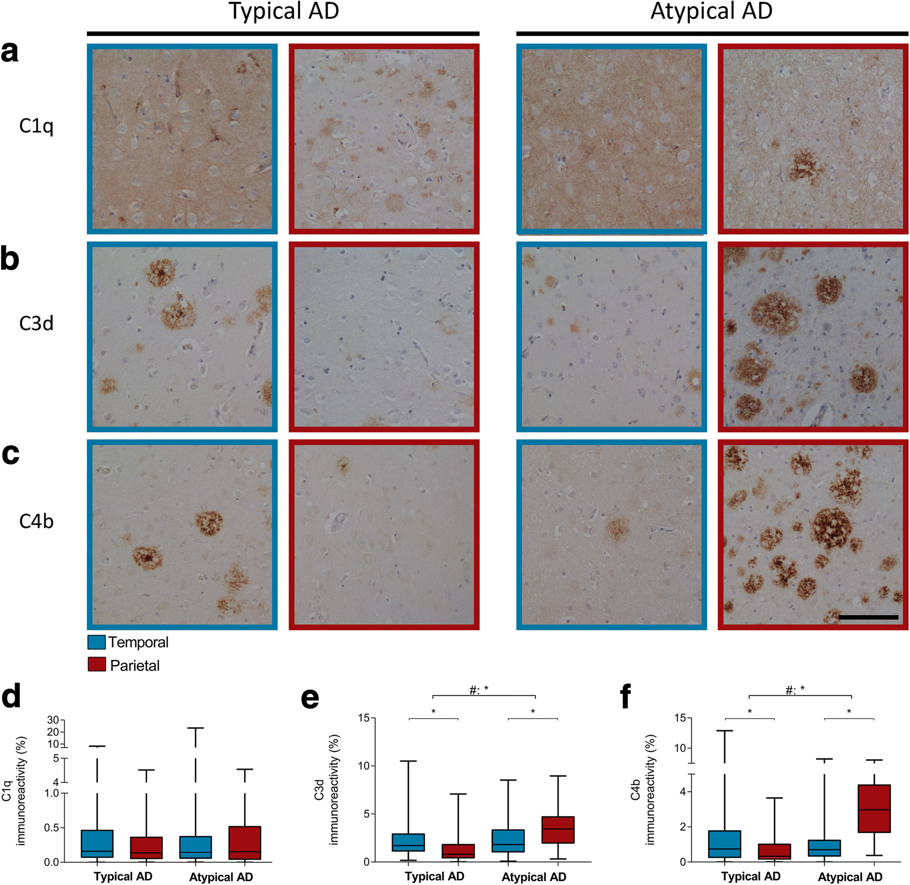 Neuroinflammation Is Increased In The Parietal Cortex Of Atypical