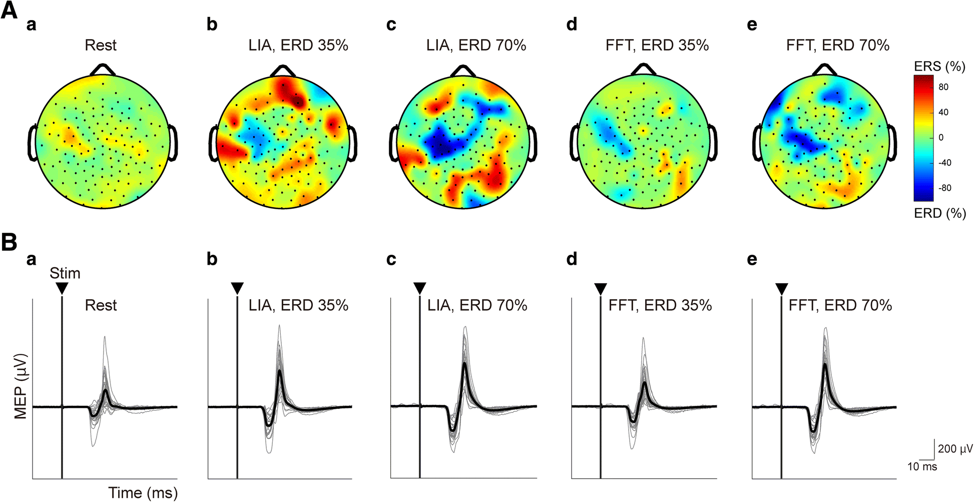 Precise Estimation Of Human Corticospinal Excitability Associated Amplitude Modulator With Ota Simple Circuit Diagram Fig 2