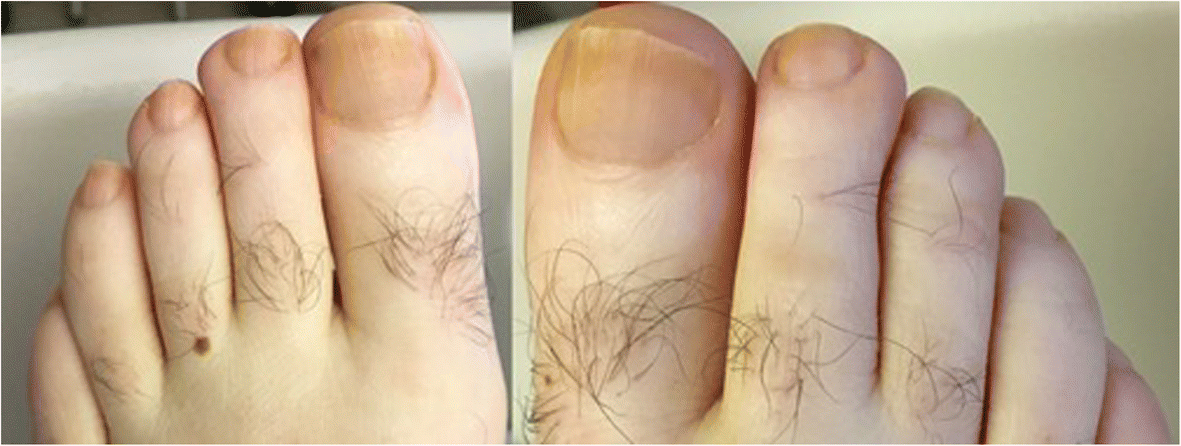 Yellow Nail Syndrome With Chylothorax After Coronary Artery Bypass