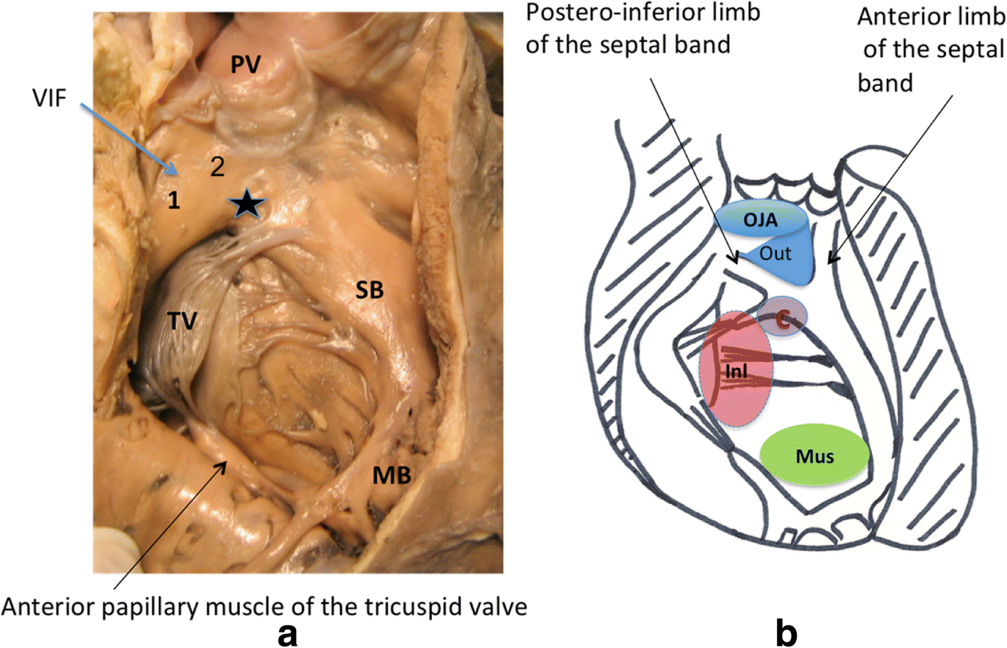 Anatomy of the ventricular septal defect in congenital heart defects ...