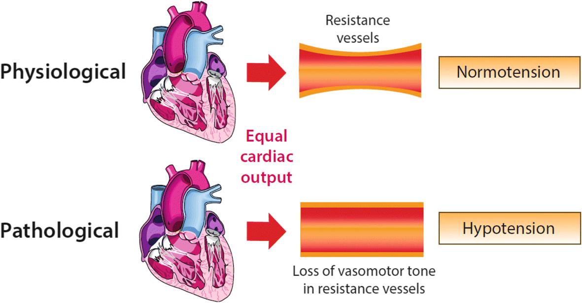 Definitions And Pathophysiology Of Vasoplegic Shock Critical Care