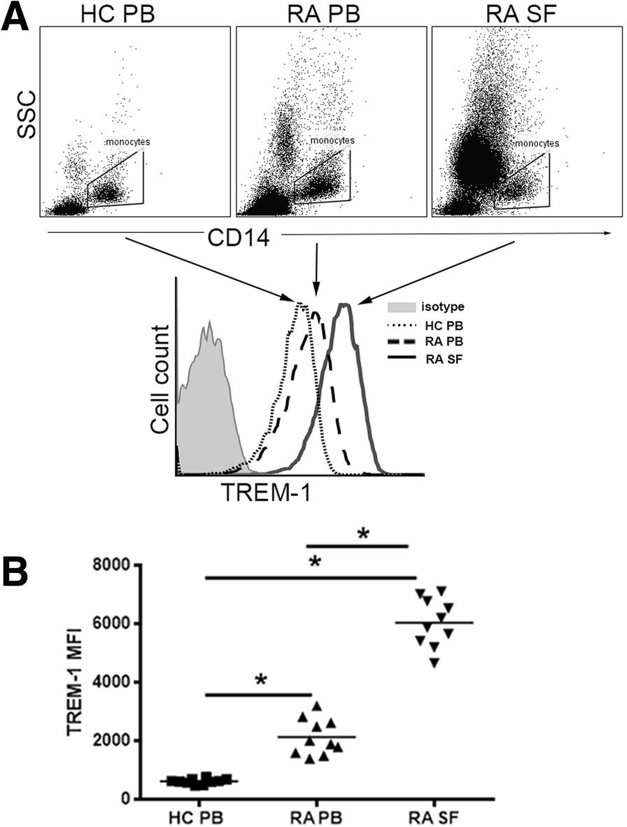 Rheumatoid arthritis synovial fibroblasts promote TREM-1 ...