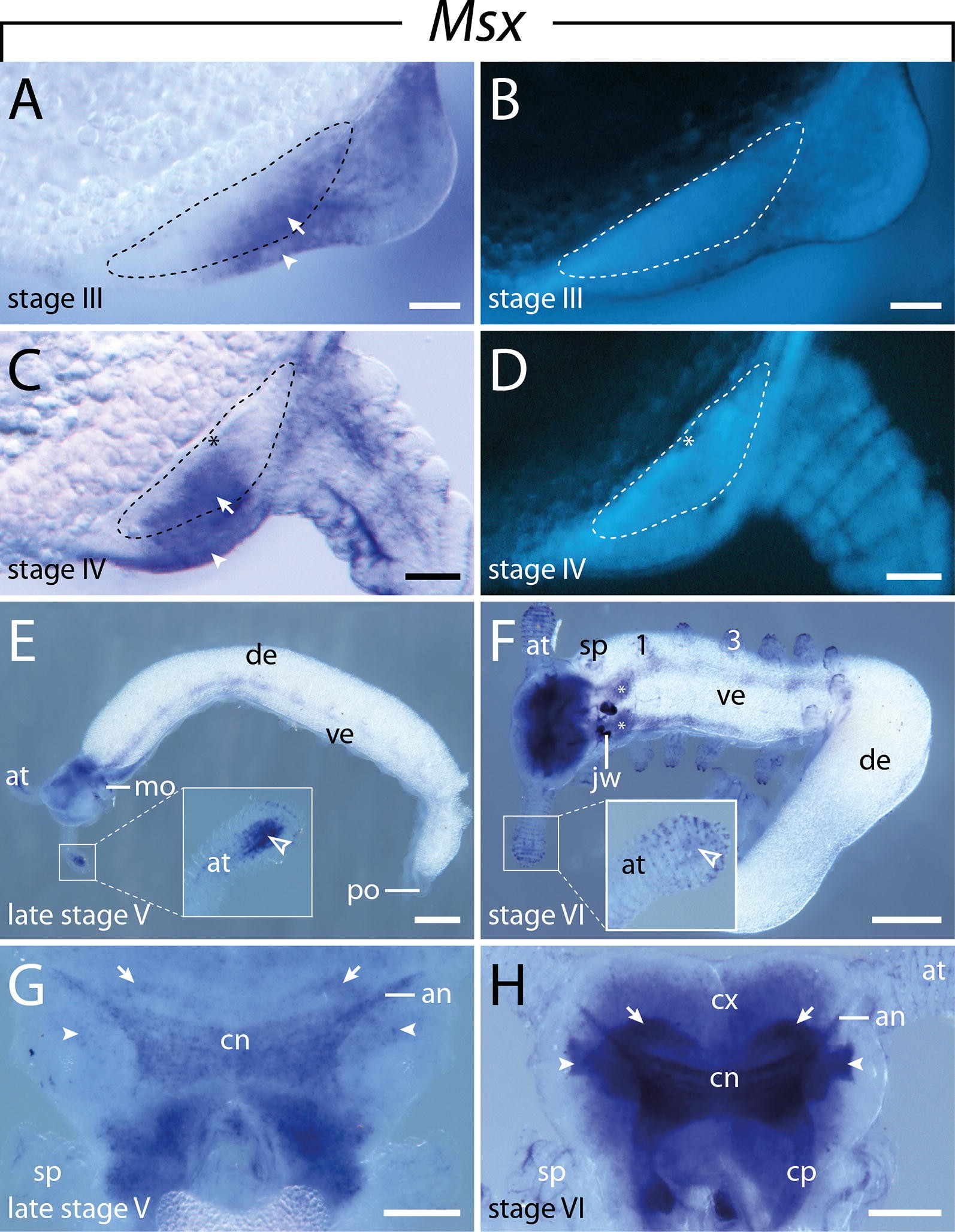 Expression of NK cluster genes in the onychophoran Euperipatoides ...