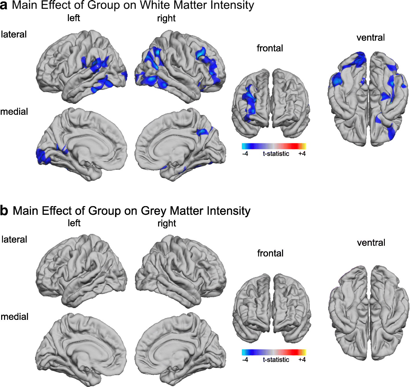The Effect Of Age On Vertex Based Measures Of The Grey White Matter