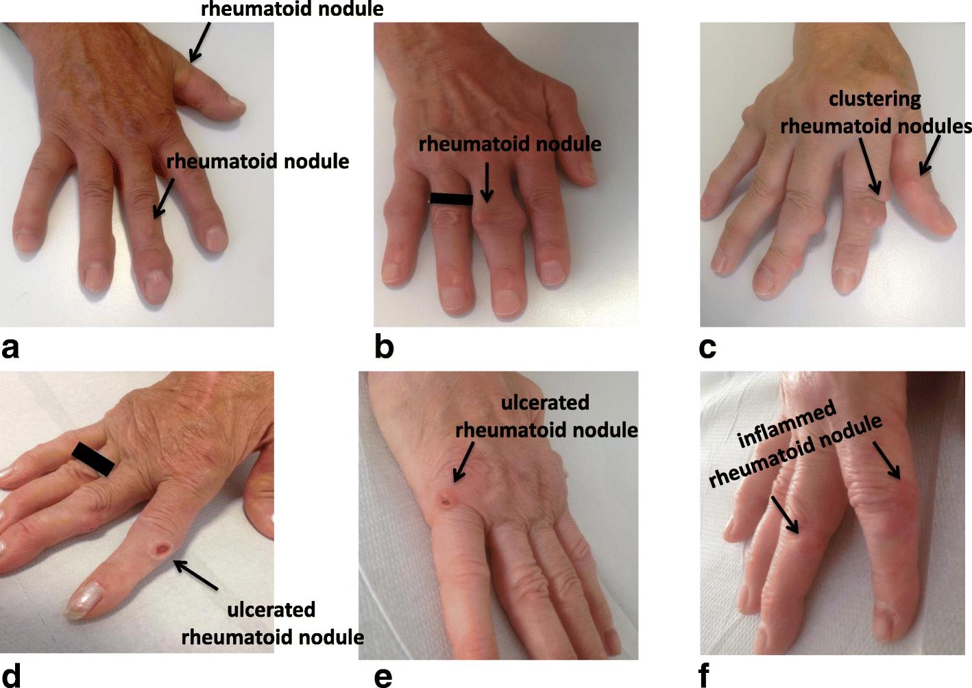 nodulos+subcutaneos+artritis+reumatoide