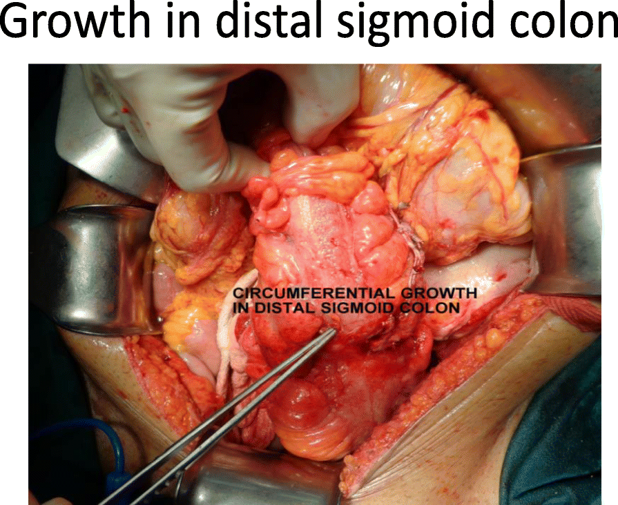 A Left Sided Cystic Pancreatic Incidentaloma With Sigmoid Colon