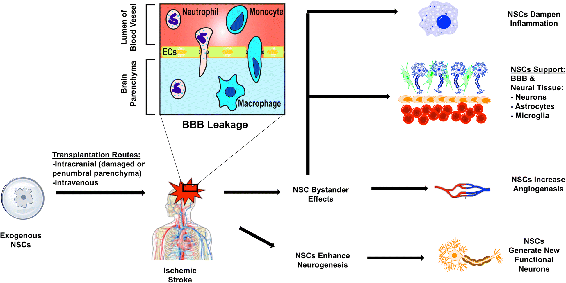 Neural Stem Cell Therapy For Subacute And Chronic Ischemic Stroke Thread Color Organ Schematic Fig 2