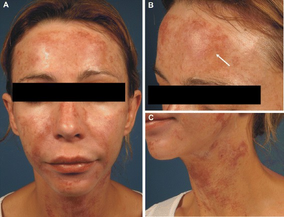 Severe Hyperpigmentation And Scarring Following Glycolic