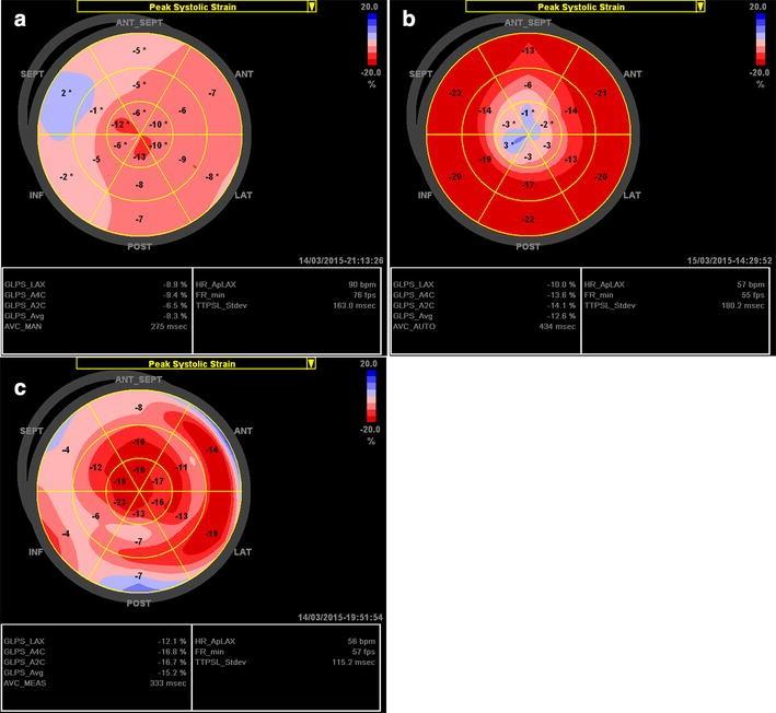 Longitudinal Strain Bull S Eye Plot Patterns In Patients
