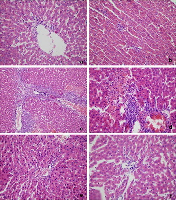 Expression Of Scavenger Receptor A In Rats Liver Tissue During
