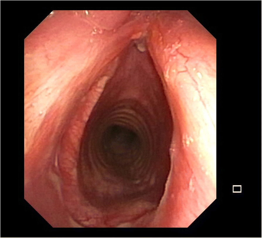 State Of The Art In Tracheal Surgery A Brief Literature Review
