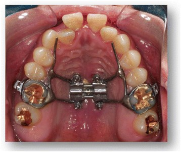 The Effects Of Micro Implant Assisted Rapid Palatal