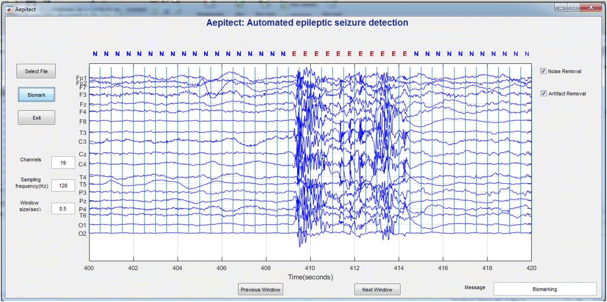 Automated epileptic seizures detection using multi-features and