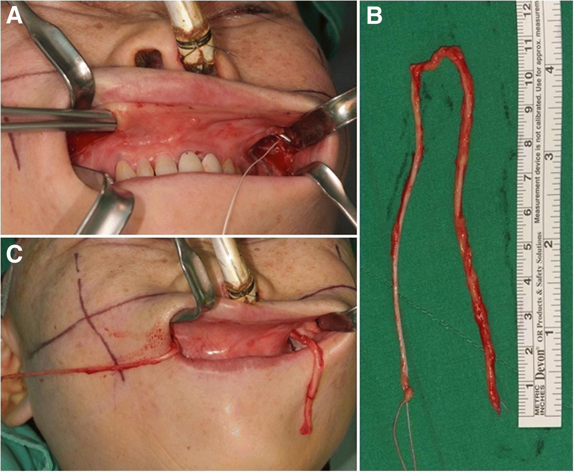 Per-oral cross-facial sural nerve graft for facial reanimation ...