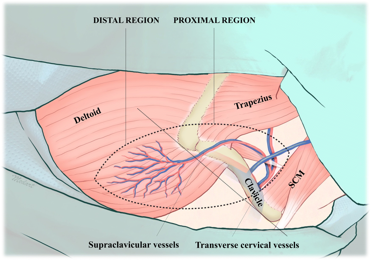 The Supraclavicular Artery Island Flap A Salvage Option For Head