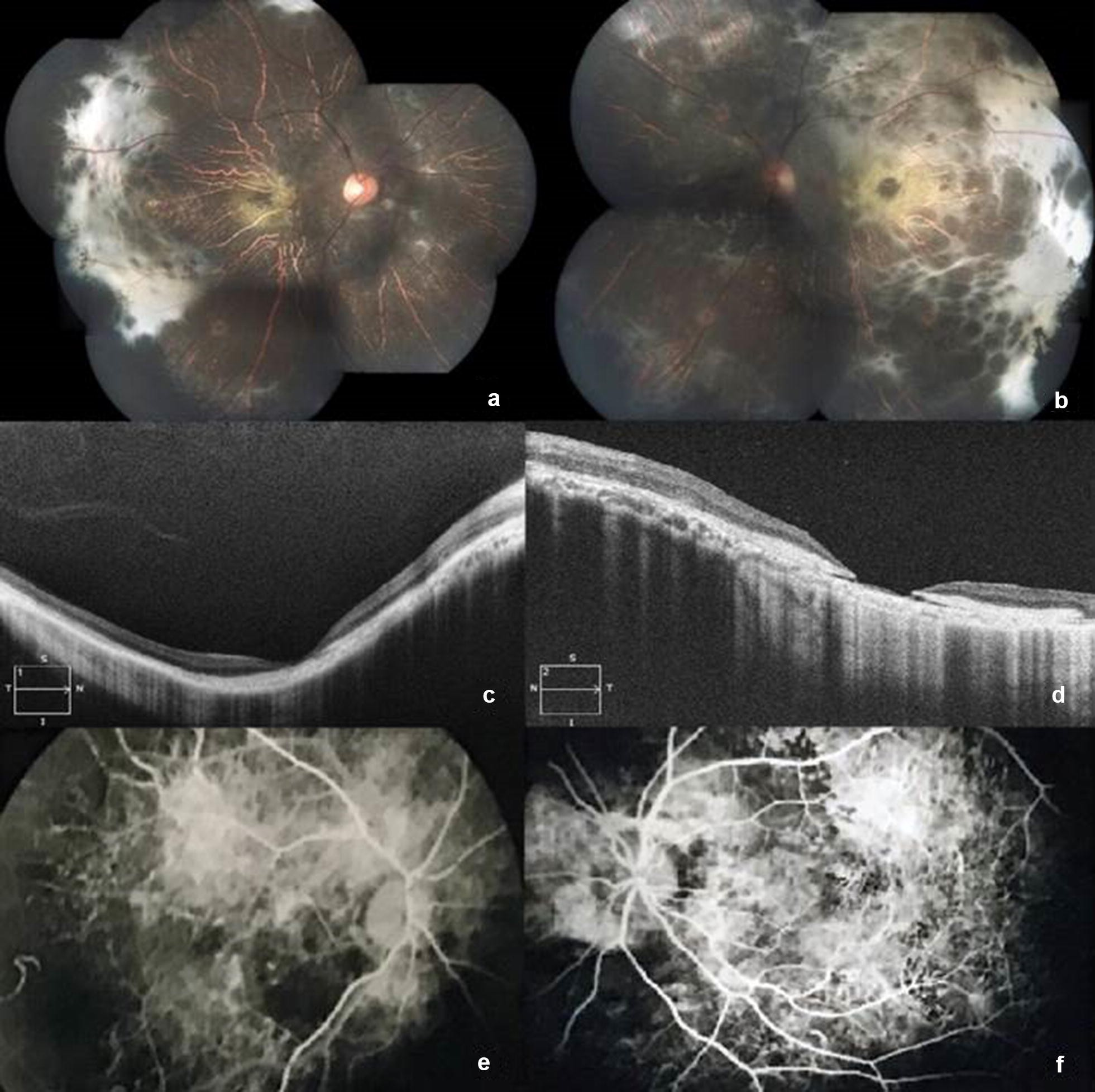Iodate Induced Toxic Retinopathy A Case Report