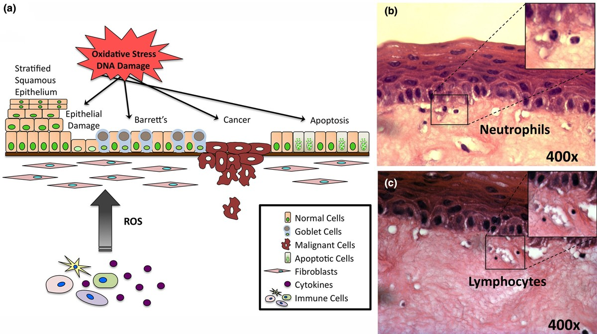 Modeling inflammation and oxidative stress in ...