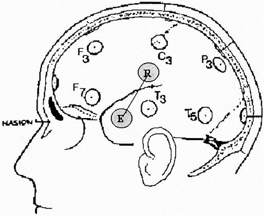 Cerebral Hemodynamic Response To Unpleasant Odors In The Preterm